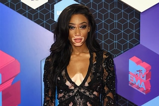 MTV EMA 2016: è Winnie Harlow, modella con la vitiligine, la vera star sul red carpet