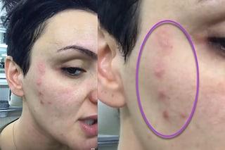 Anche Arisa ha i brufoli: cause, rimedi e consigli di trucco per l'acne in età adulta