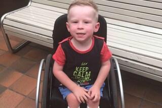 A 4 anni cammina per la prima volta: Jett è nato senza una parte di colonna vertebrale