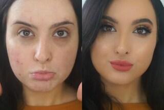 Elimina i brufoli in 60 secondi: l'incredibile trasformazione grazie al make-up