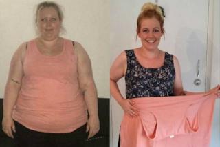"""""""Non sono andata in spiaggia per 17 anni"""": la trasformazione di Katy dopo aver perso 60 kg"""