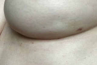 La foto del seno diventa virale: la donna mostra un sintomo sconosciuto del cancro