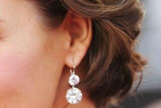 Perché alcune persone hanno un forellino sopra l'orecchio?