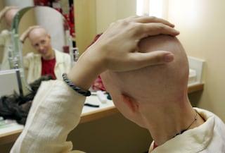 """""""Ho creduto di morire"""": 3 sopravvissuti al cancro raccontano le loro storie strazianti"""