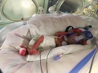Jack, il bimbo nato prematuro, è morto tra le braccia della mamma