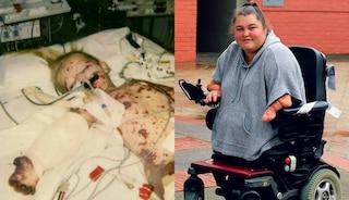 """""""Temo di non poter avere figli"""": non ha più gli arti, la meningite le ha rovinato la vita"""