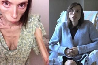 """""""L'anoressia mi ha fatto sentire al sicuro"""": la straziante lotta di Stephanie"""