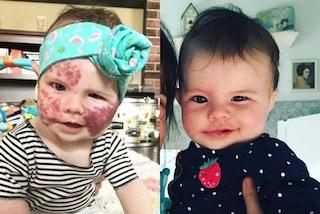 Le voglie sul viso le sfigurano il volto: dopo l'intervento laser Willow ha un viso nuovo