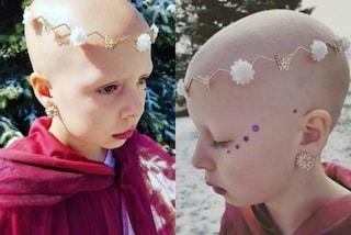 A 7 anni soffre di alopecia, ricopre la testa con dei gioielli: Gianessa è una guerriera