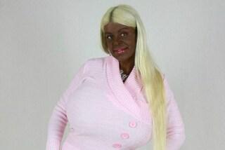 """""""Voglio essere la Barbie esotica"""": Martina ha speso 50mila sterline in chirurgia"""