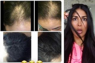 Perde i capelli dopo la gravidanza, con i consigli della blogger risolve il problema