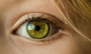 Macchie gialle sugli occhi: ecco cosa potrebbero nascondere
