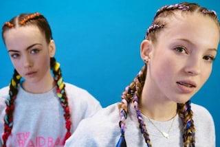 Lila Grace, la figlia di Kate Moss modella con apparecchio per i denti e treccine colorate