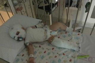 Il neonato si rovescia il bollitore sul corpo, oggi non riesce più a parlare e camminare