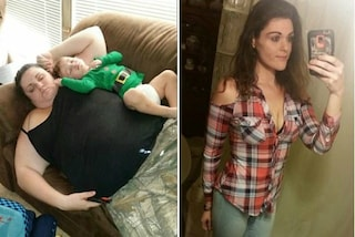 """Perde 108 kg con la chirurgia, si ritrova con la pelle flaccida: """"Il mio corpo mi disgusta"""""""