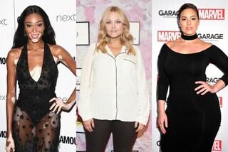 """Cellulite e vitiligine: le modelle """"imperfette"""" che vanno fiere dei loro difetti"""