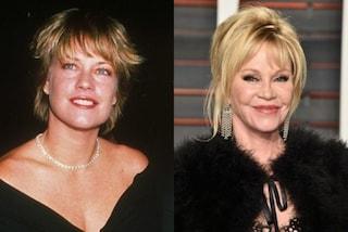 Melanie Griffith prima e dopo la chirurgia: come è cambiata la diva di Hollywood