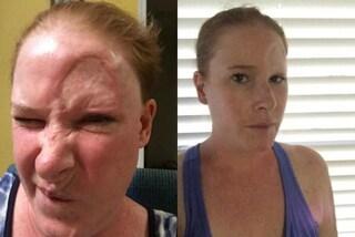 Le compare un punto scuro sulla fronte, scopre che è un cancro: ora ha la fronte sfigurata