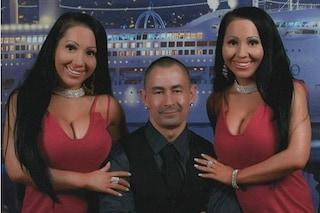Vogliono avere un figlio dallo stesso uomo: le gemelle sognano di condividere la gravidanza