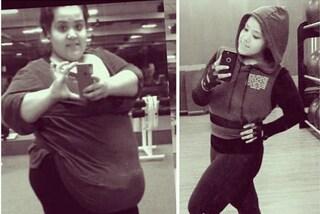 Consumava 4mila calorie al giorno, oggi Maria ha perso 109 kg con la chirurgia
