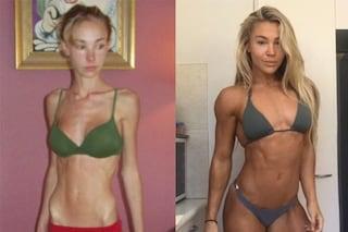 Da 26 kg a 56 kg: Hattie ha sconfitto l'anoressia con il fitness