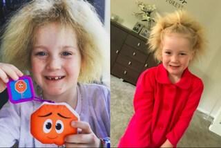 Chioma indomabile: Shilah non può pettinare i capelli a causa di una rara malattia
