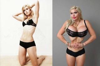 """Dopo 200 interventi di chirurgia, la modella si difende: """"Non lo faccio per vanità"""""""