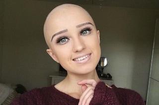 Sono bella anche senza capelli: il coraggio di Lauren che mostra i segni dell'alopecia