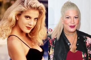 La trasformazione di Tori Spelling: come è cambiata la Donna di Beverly Hills