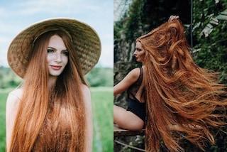 Soffriva di alopecia, oggi ha capelli come Raperonzolo: così ha risolto il suo problema