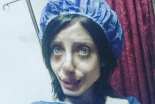 Sahar Tabar e i 50 interventi per trasformarsi in Angelina Jolie, ecco qual è la verità