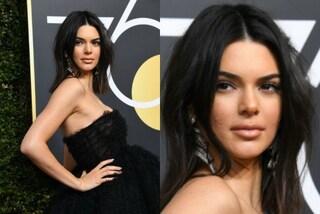 Kendall Jenner con l'acne: la modella risponde così alle critiche del web