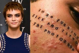 Posta la foto dell'acne ed è boom di like: così Cara Delevingne si ribella a Photoshop