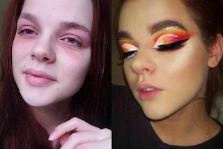 Trasforma l'eczema in un'opera d'arte: Bronya usa il make-up in modo incredibile