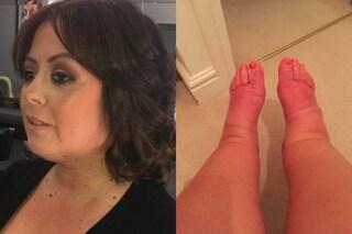 """""""I miei piedi sembrano zampe di maiale"""", Lisa vuole ricorrere a una liposuzione"""
