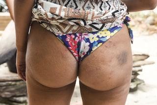 """Isola dei Famosi: ecco i corpi dei naufraghi dopo """"l'attacco"""" dei mosquitoes"""