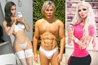 Dal Ken umano alla Barbie in carne e ossa: le foto dei peggio rifatti della storia