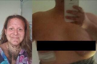 """""""Il silicone usciva dalla cicatrice"""": la terribile esperienza dopo essersi rifatta il seno"""