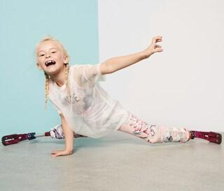 Daisy non ha le gambe, a 7 anni riesce ad esaudire il sogno di diventare modella