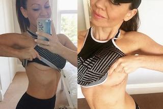 """""""Le protesi al seno mi hanno reso quasi cieca"""": Sarah racconta il suo incubo"""