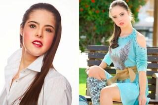 """Marián, la modella con la sindrome di Down che sfilerà a New York: """"Realizzo un sogno"""""""
