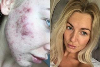 Soffre di acne a 21 anni, usa un aggressivo disinfettante per ferite per curarlo