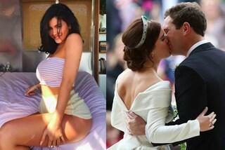 Da Eugenie di York a Kylie Jenner: tutte le star che vanno orgogliose delle loro cicatrici