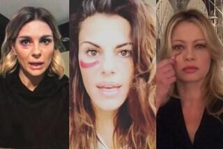 Non è normale che sia normale: le star con un occhio nero contro la violenza sulle donne