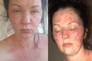 Cambia colore di capelli, la pelle si riempie di ustioni: la tintura le ha fatto allergia