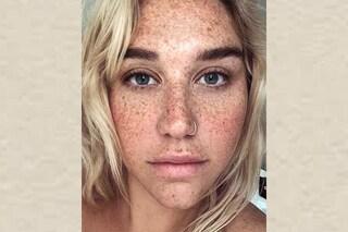 """Kesha mostra con orgoglio le lentiggini: """"Voglio amare me stessa così come sono"""""""