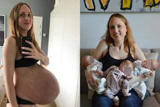 """Dopo aver partorito 3 gemelli mostra la pancia ancora gonfia: """"Non voglio che sia un tabù"""""""