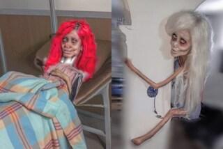 Sempre più magra col collo rotto: la Sposa Cadavere sosia di Angelina Jolie provoca con le foto fake