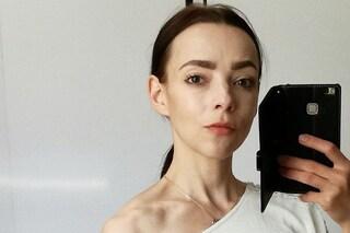 L'anoressia le aveva fatto fermare il cuore, la sorella l'ha salvata: oggi ha sconfitto la malattia