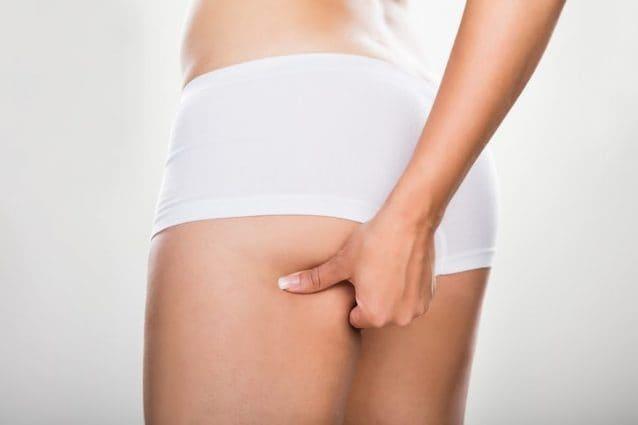 come ridurre il grasso sulla parte posteriore delle gambe